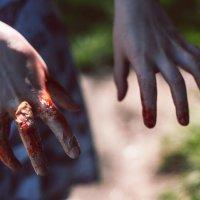 рука кровь :: Алексей Хижняк