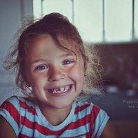 Временное отсутствие зуба - не повод отказываться от улыбки... :: Ксения Старикова